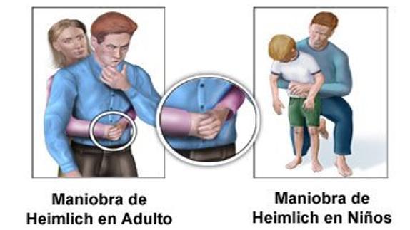 maniobra heimlich adultos y niños